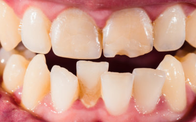 Reasons to Choose Invisalign at an Orthodontist in Glenview IL
